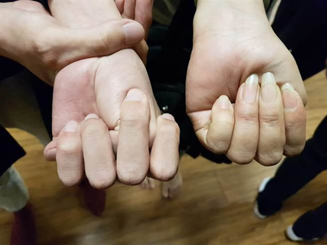 台灣先天性心臟病關懷協會理事長陳豐霖舉例,若握拳向內的姆指,超出小指的人(左),則極有可能為「馬凡氏症候群」患者,屬於發生主動脈剝離的高危險群。(張妍溱攝)