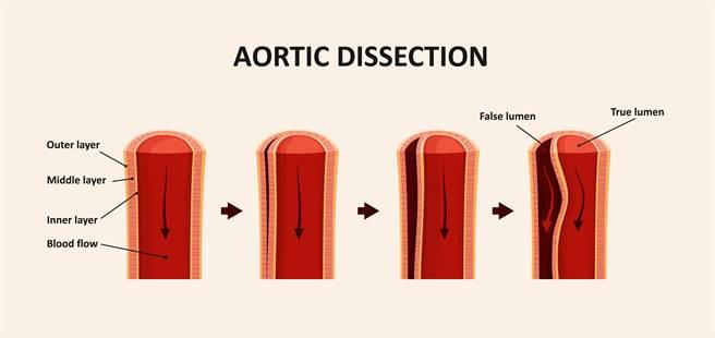 主動脈剝離示意圖。(圖/達志影像)