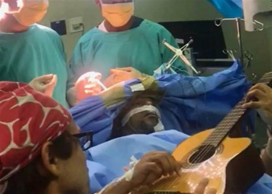 開腦手術邊彈吉他 音樂家從容演奏(圖片取自/美聯社)