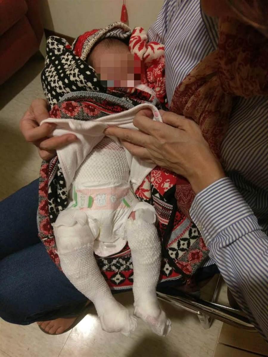 嬰兒穿著尿布,但從肚子以下及雙腿都包滿著紗布。(翻攝自《爆料公社》)