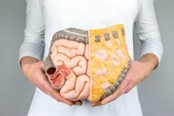 內臟脂肪過多恐致癌 3成癌症死因與這些有關