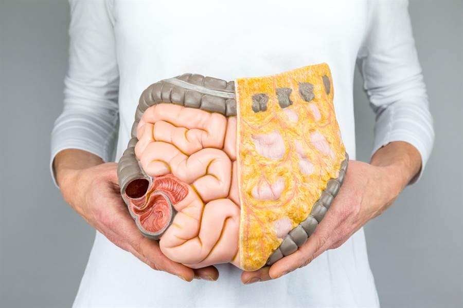 內臟脂肪過多恐致癌 3成癌症死因與這些有關(示意圖/取自 達志影像)