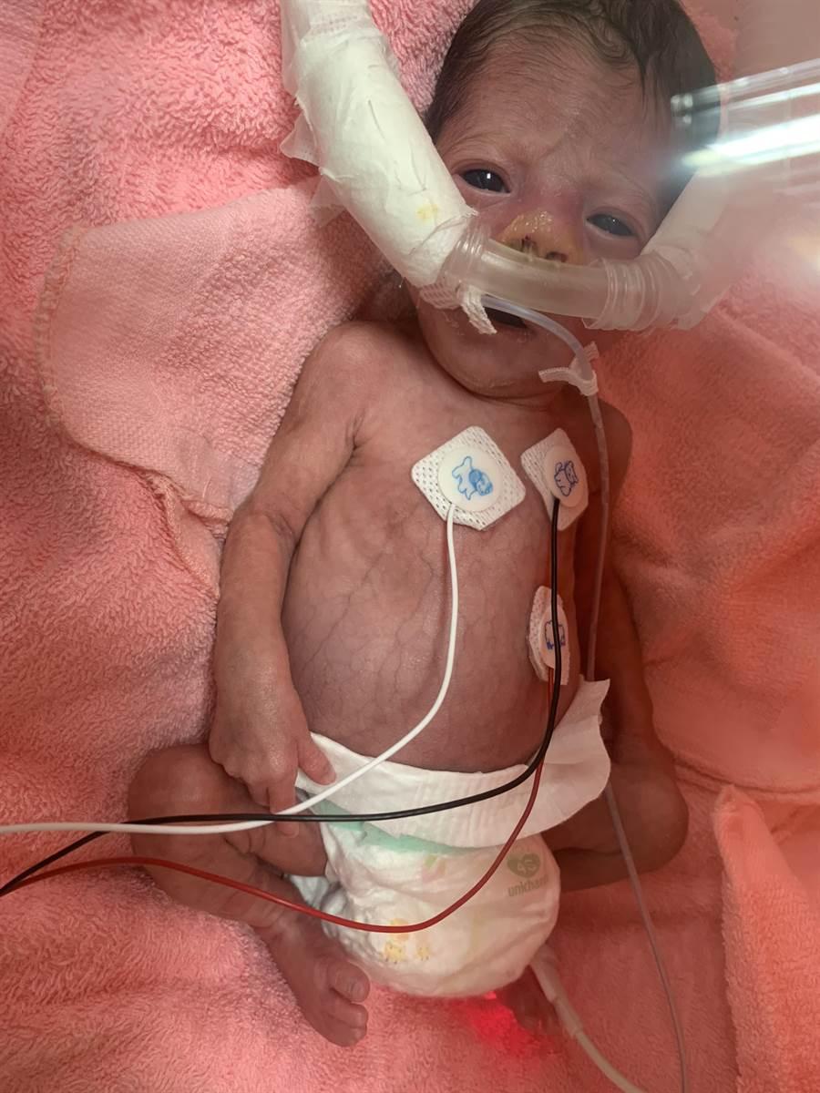 寧寧在母親妊娠不足7個月時提早出生,當時體重才815克,一度因脫水到688克,所幸東元醫護團隊不屈不折、悉心照護,平安出院。(莊旻靜攝)