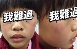 影》小考沒考好 9歲童被安親班老師要求自打巴掌200下
