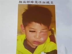 5歲童蛀牙引蜂窩性組織炎 臉腫如豬頭