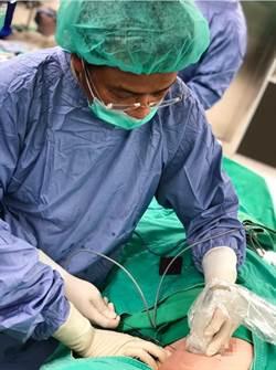 「冷凍針」提供乳癌患者新選擇