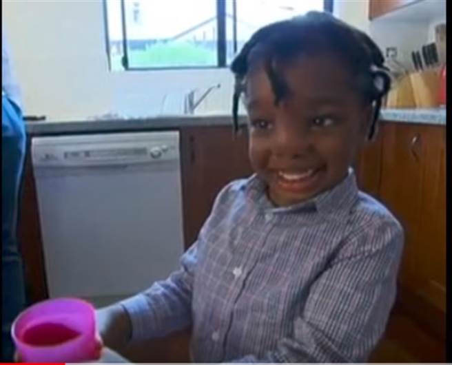 嬰兒大腦長頭顱外 術後成功變超萌小男生(圖片截自Youtube)