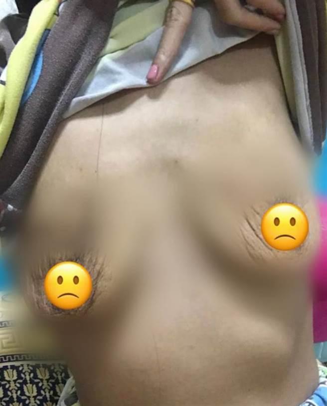 取出矽膠後,女子的胸部秒變皺,變得像兩個皮囊(圖翻攝自/中國報)
