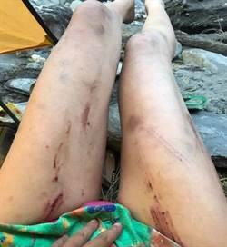 影》比基尼登山客待救援 曾為「上月墜谷」爆哭:撿回一命
