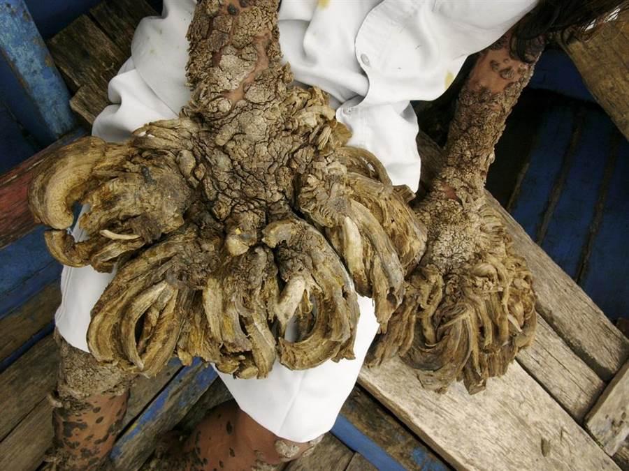 孟加拉「樹人」巴強達病情復發、惡化,雙手再度長出2.5公分疣,疣更散佈腳及身體其他部位,圖為疣長滿雙手的患者照,非當事人。(圖/shutterstock)