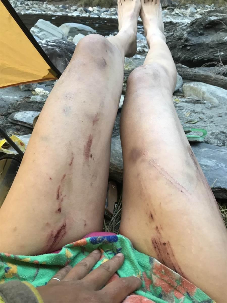 「G」哥每一次登山都會傳賴跟山友分享,成功登頂的照片,尤其被山林樹枝穿刺、割傷雙腿,令山友看了相當心疼不捨。(照片由山友提供)