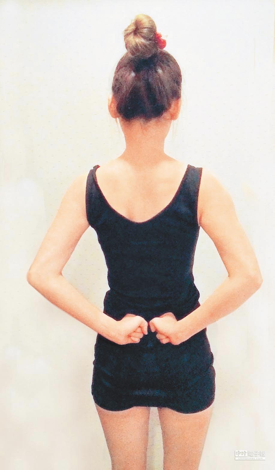 尾骨為脊柱的終末部分,此處神經分布敏感,且易於受傷。(本報系資料照片)
