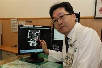 6旬患者感冒引鼻竇炎造成嚴重併發症