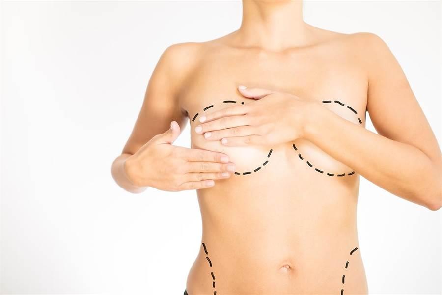 最讓媽咪困擾的產後外表問題為「乳房下垂」、「腹部鬆弛」及「妊娠紋」/圖片來源:淨妍醫美提供