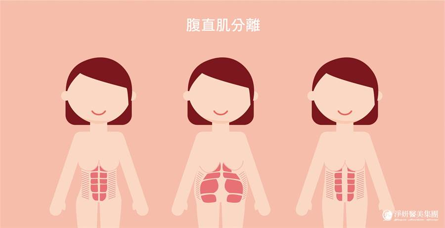 產後腹部除了鬆弛問題還有53%的女性有腹直肌分離的情形/圖片來源:淨妍醫美提供