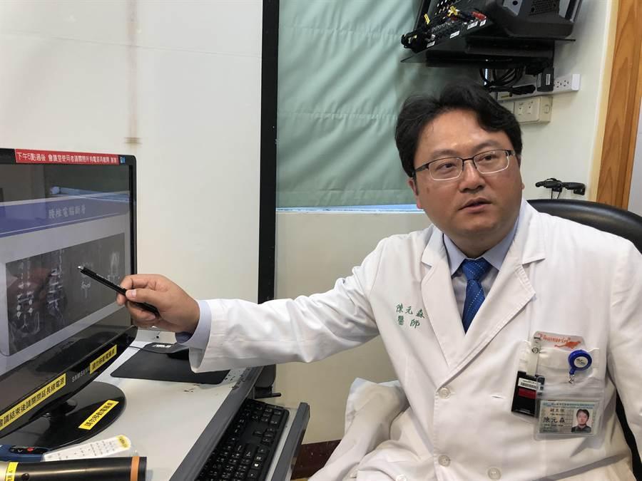 台大醫院雲林分院神經外科主任陳元森說,以微創手術新方法治療脊椎等術後伴隨而來的鄰近節段退化很有效,不易引發肌肉組織萎縮、神經根受傷、硬脊膜破損及沾黏等。(許素惠攝)