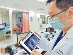 台北榮總月底開辦AI門診