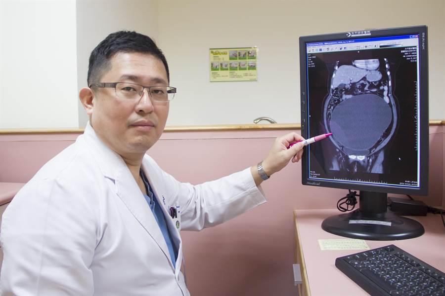 大千綜合醫院醫療副院長暨婦產科醫師林敬旺表示,定期做婦癌檢查是保障女性朋友健康的重要關鍵。(何冠嫻翻攝)
