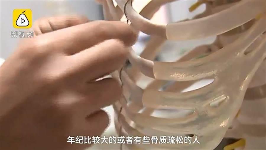 醫生表示,骨鬆、年長和肥胖者有可能出現這種症狀。(翻攝梨視頻)