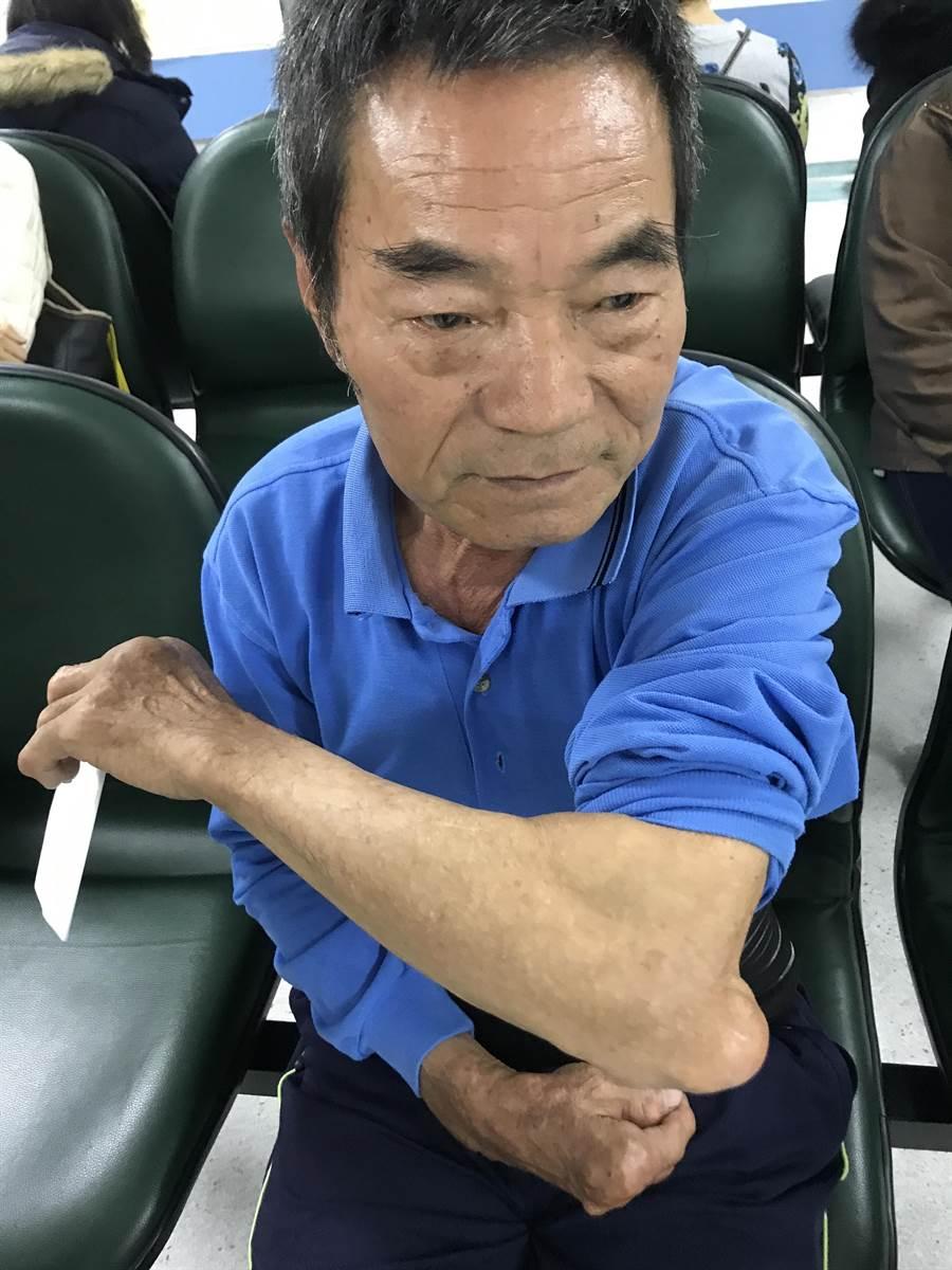 林姓退休運將痛風長達20年,卻因愛吃海鮮、火鍋,病情一度失控,所幸接受治療並服藥1個月後,終於恢復正常行動。(林欣儀攝)