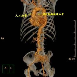 後背撕裂痛小心致命   恐是主動脈剝離快就醫