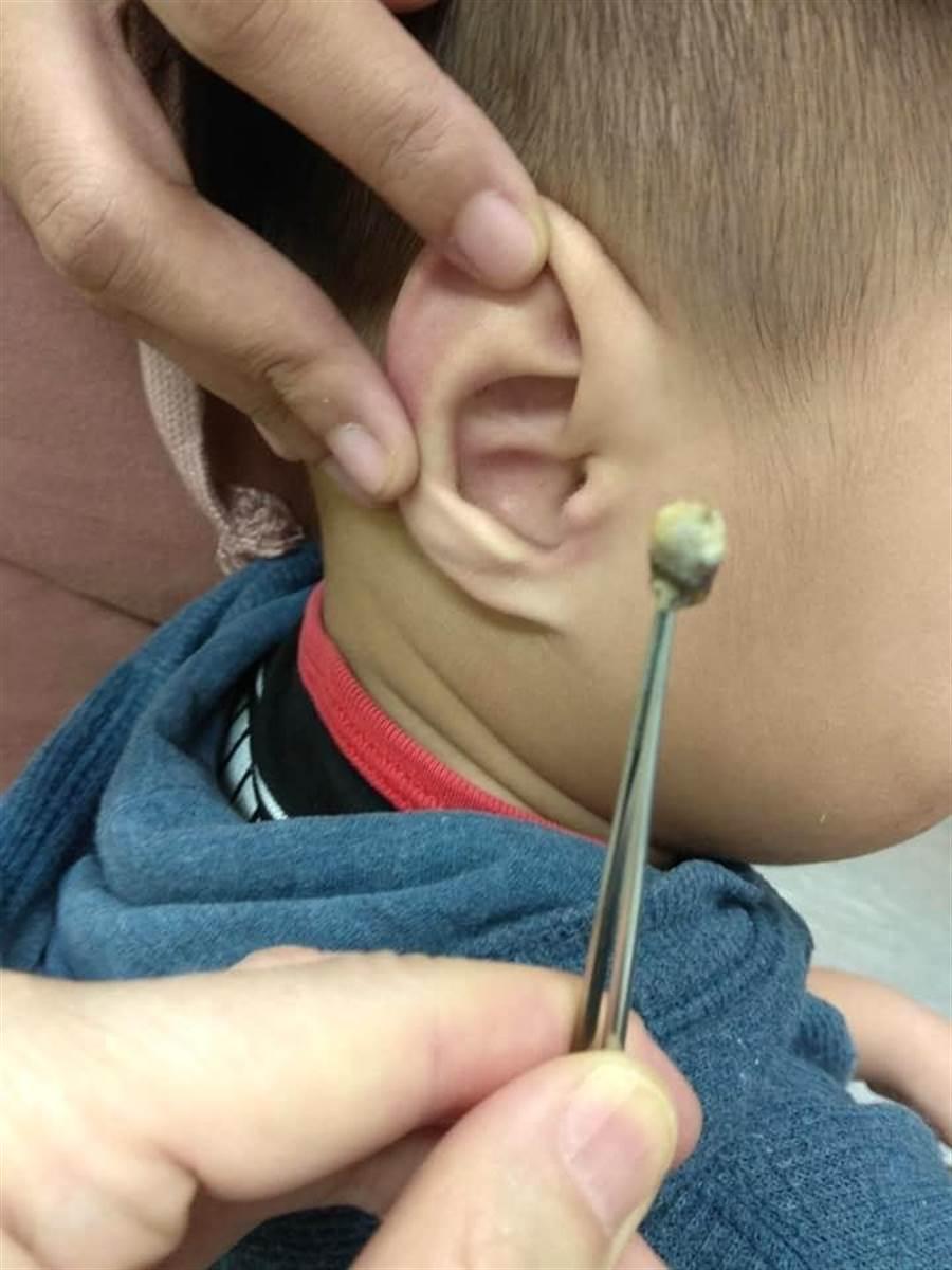 花蓮1名3歲男童疑似失聰,送醫挖出2公分大的耳屎,找出影響聽力原因。(許家寧翻攝)