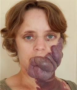 胎記被稱「紫色食人者」 她轉變令人驚嘆