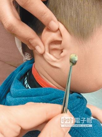 3歲童失聰 醫挖出2公分耳屎