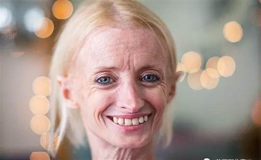 衰老速度是常人8倍 她未曾擁有青春(圖片取自/微信 英國那些事兒)