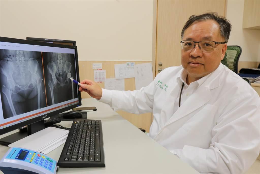 亞大醫院醫療副院長黃揆洲指出患者髖部關節疼痛的位置。(林欣儀攝)