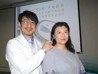 頭痛到爆伴隨白光 48歲女動脈瘤險爆裂