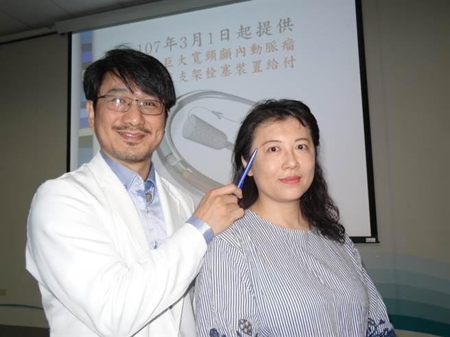 48歲洪小姐去年4月間接受密網導流支架成功阻斷血流進入腦部動脈瘤中,治療6個月後回診,位於右眼眶後的動脈瘤已縮小。(馮惠宜攝)
