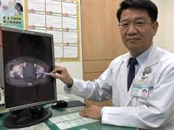 退休醫師排尿滴滴落 罹3期攝護腺癌