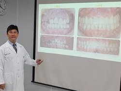 注意!30歲OL滿口爛牙 治療花光一年薪水