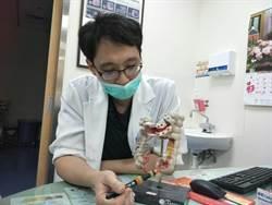 女罹大腸癌第3期 3D腹腔鏡切除術救命