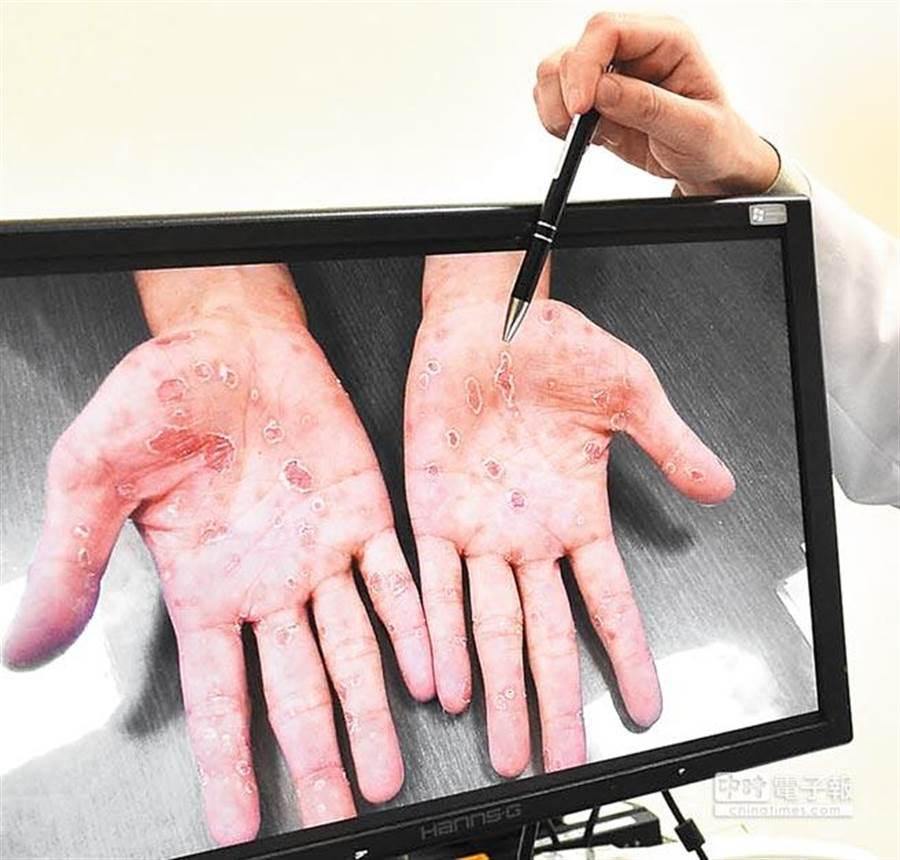 台中28歲男子約炮沒戴套,手掌起紅疹,求醫後才知道自己染二期梅毒 (示意圖/本報資料照)