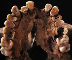 1.5萬年前人類吃什麼 蛀牙告訴你!