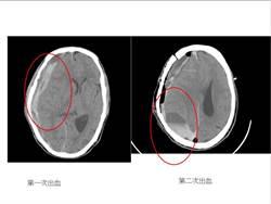 七旬翁硬腦膜下出血 豐醫急調68支藥物救命
