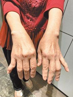 手指疼痛變形 需防骨關節炎