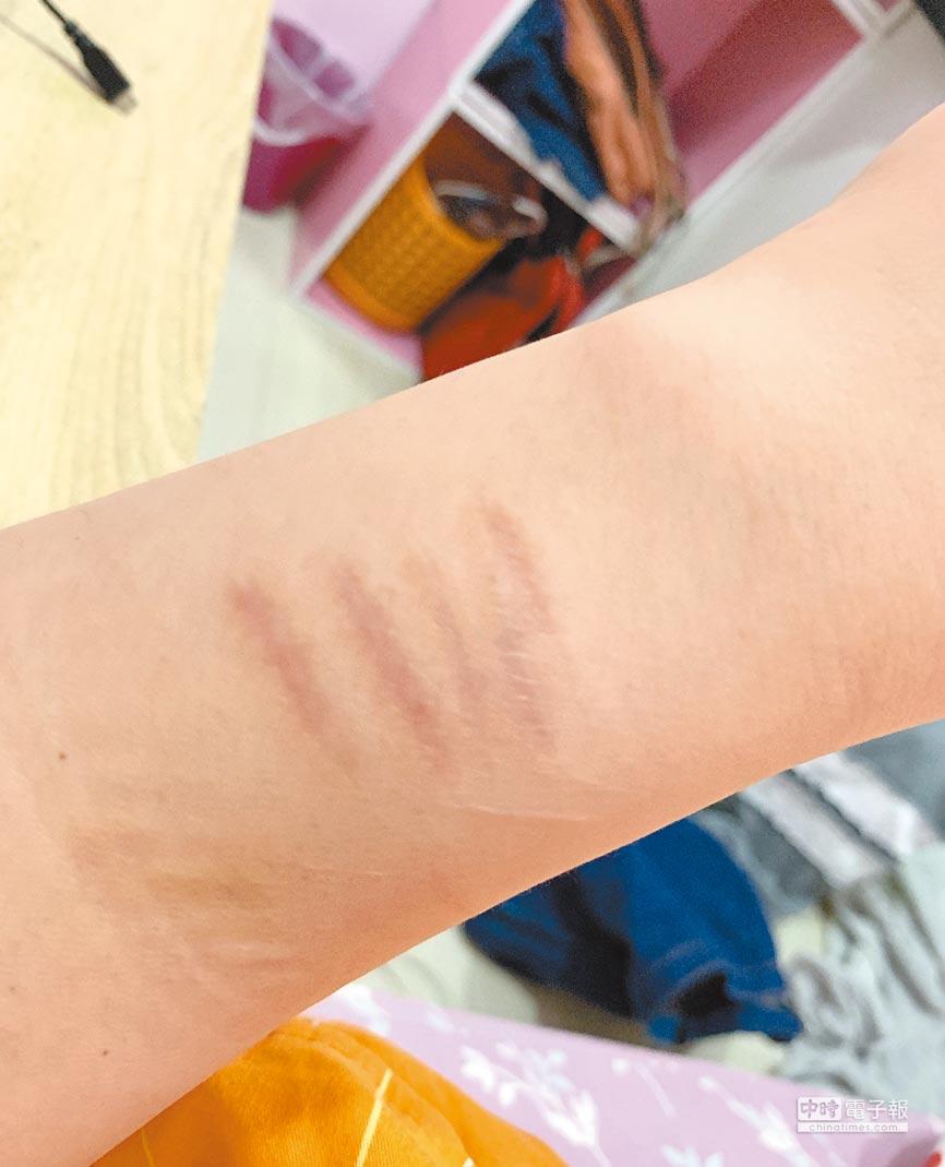 楊上昀昔日割腕的痕跡依然清晰可見。