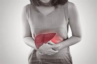 降脂肪肝吃少油不夠 醫疾呼快戒手搖飲