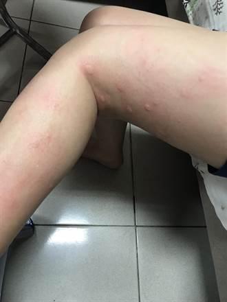 小黑蚊搔癢難耐童險感染 醫:冷水沖避免抓