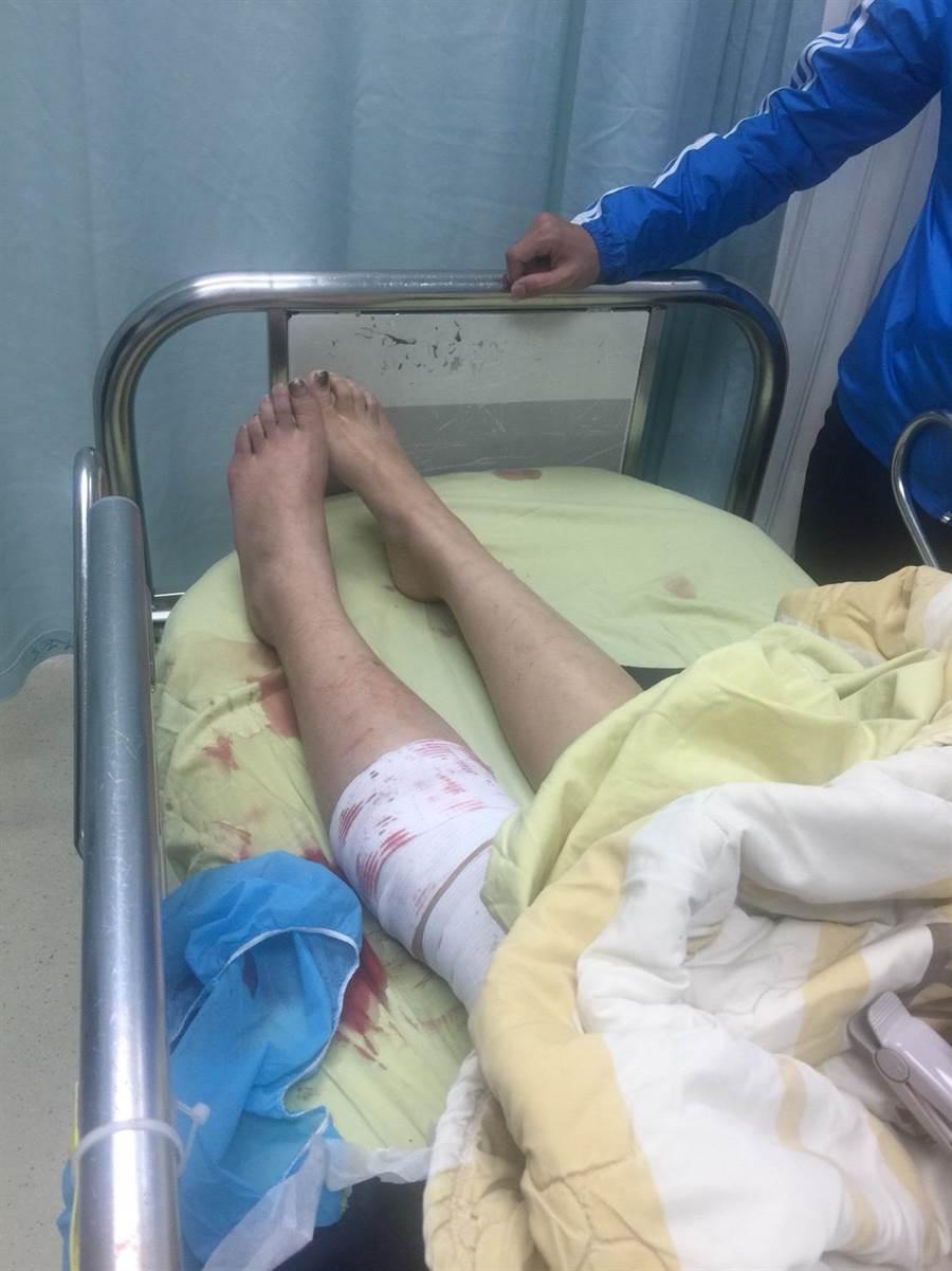 萬華分局交通分隊劉姓女警9日上午在隊部不慎誤擊配槍,不慎擊傷自己左腿。〔謝明俊翻攝〕