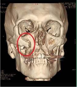 摔下樓梯右臉凹陷面癱 手術還原面容