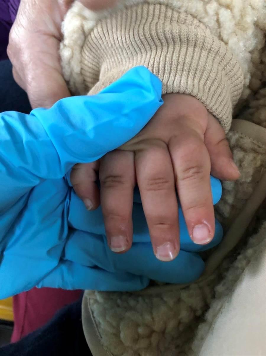 幼童嫩手被鋁門窗夾住,脫困後仍有紅腫情形。(徐養齡翻攝)