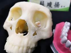 太罕見!少女牙齦腫脹滲水 竟是阻生智齒躲眼下