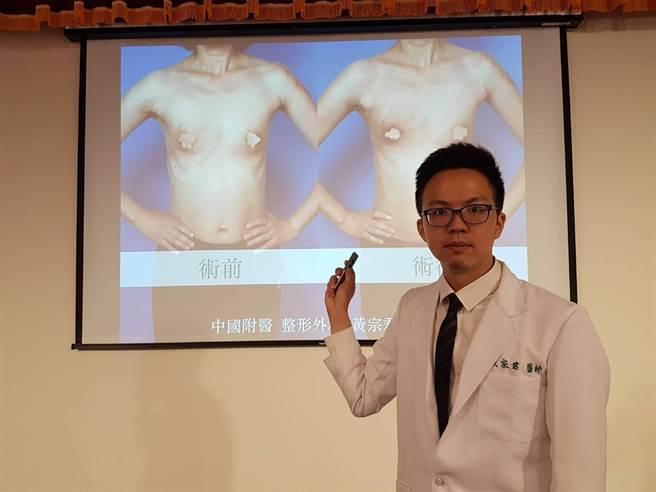中國醫藥大學附設醫院整形外科醫師黃宗君,為患者以「內視鏡全乳房切除及闊背肌皮瓣乳房重建手術」,利用背部的闊背肌轉至胸前作乳房重建。(張妍溱攝)