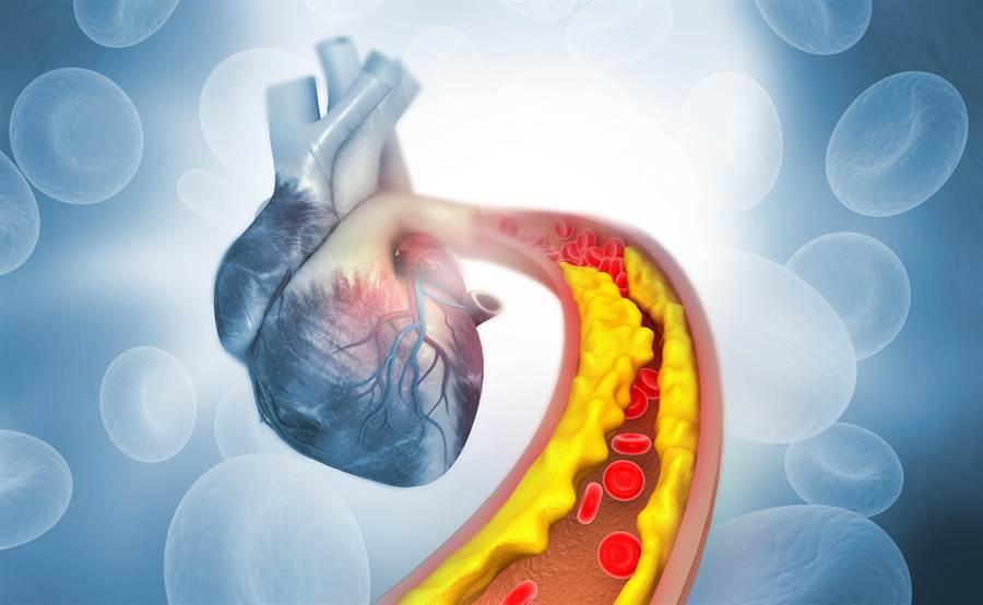 美國有最新研究發現,壞膽固醇過低也可能導致出血性中風。(圖/達志影像)