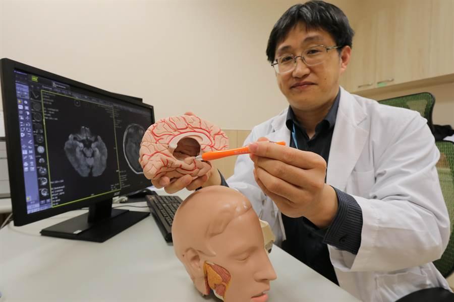 亞大醫院神經內科主任王馨範指出抗NMDA受體腦炎位置。(林欣儀攝)