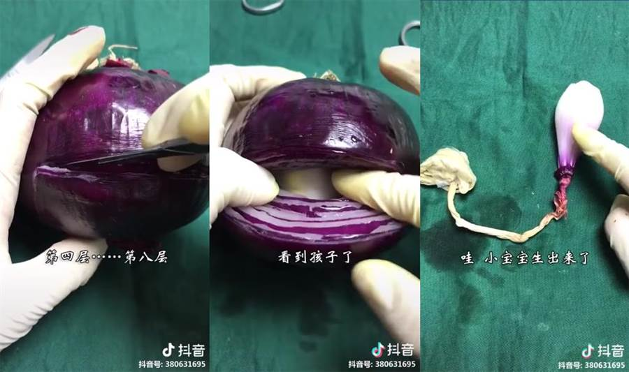 洋蔥示範剖腹產「切8層」網看哭了(圖片翻攝自臉書《爆廢公社二館》)